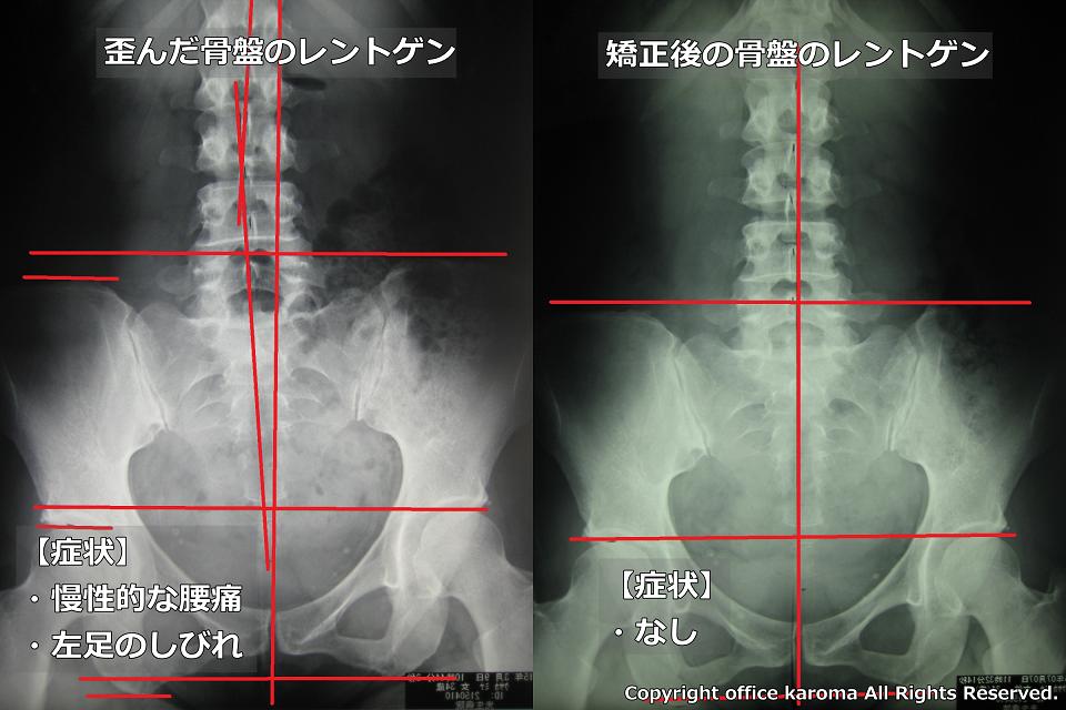 骨盤・坐骨神経痛プレポス