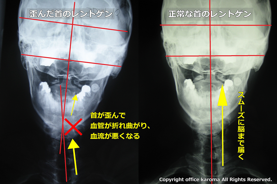 頚椎・血流