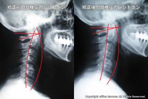 頚椎症プレポス