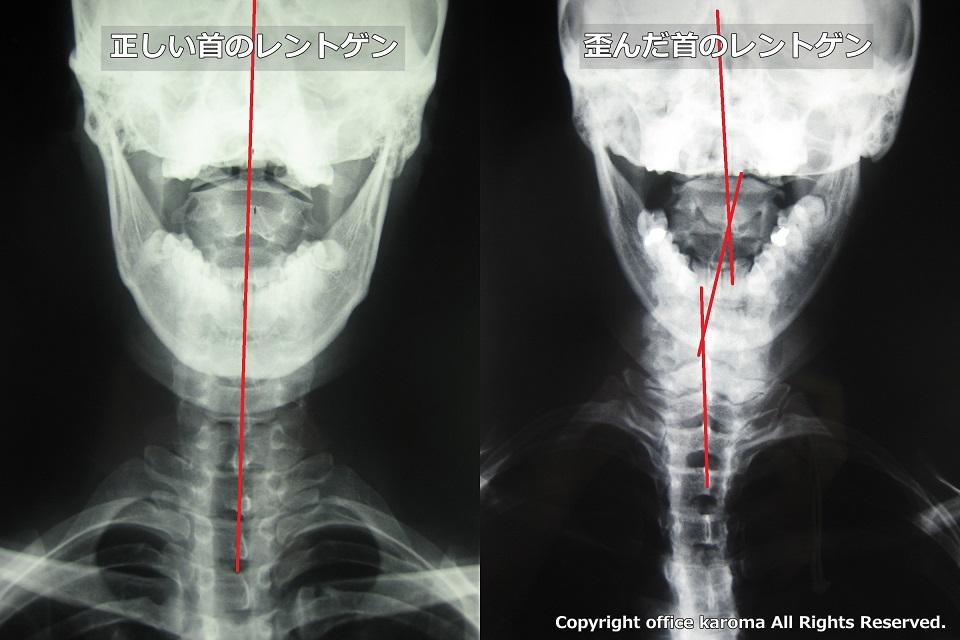 頚椎,寝違え,レントゲン