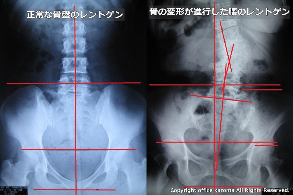 腰椎,変形