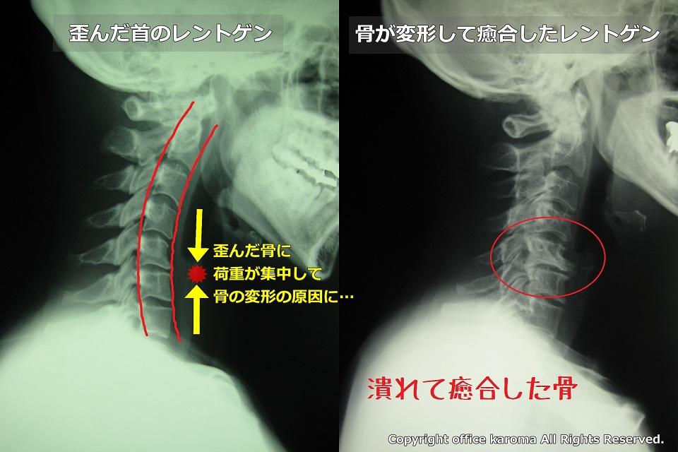 頚椎,変形,癒合
