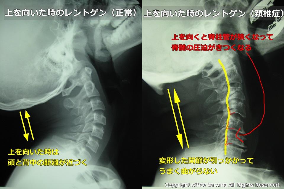 頚椎症,上を向く,骨が神経に触る