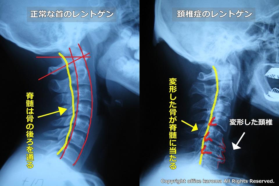 頚椎症,骨が神経を触っているレントゲン