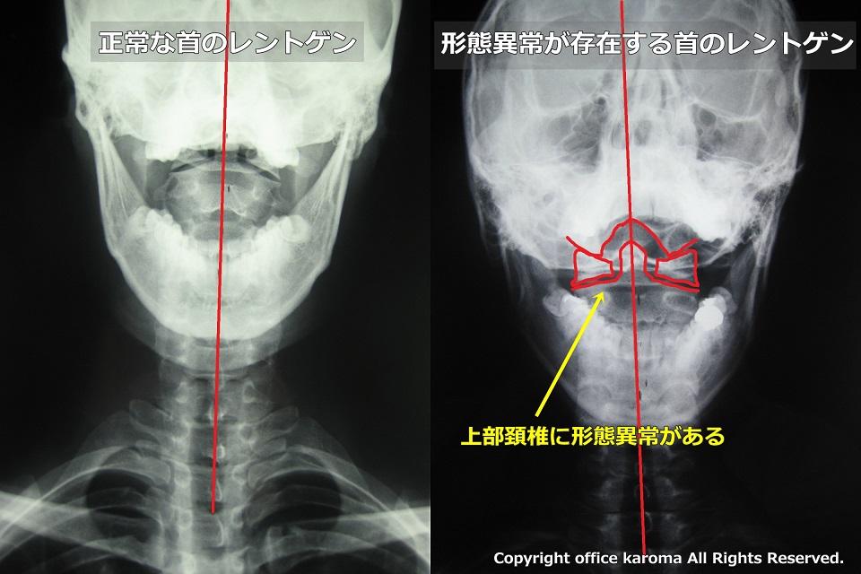 上部頚椎,奇形,形態異常