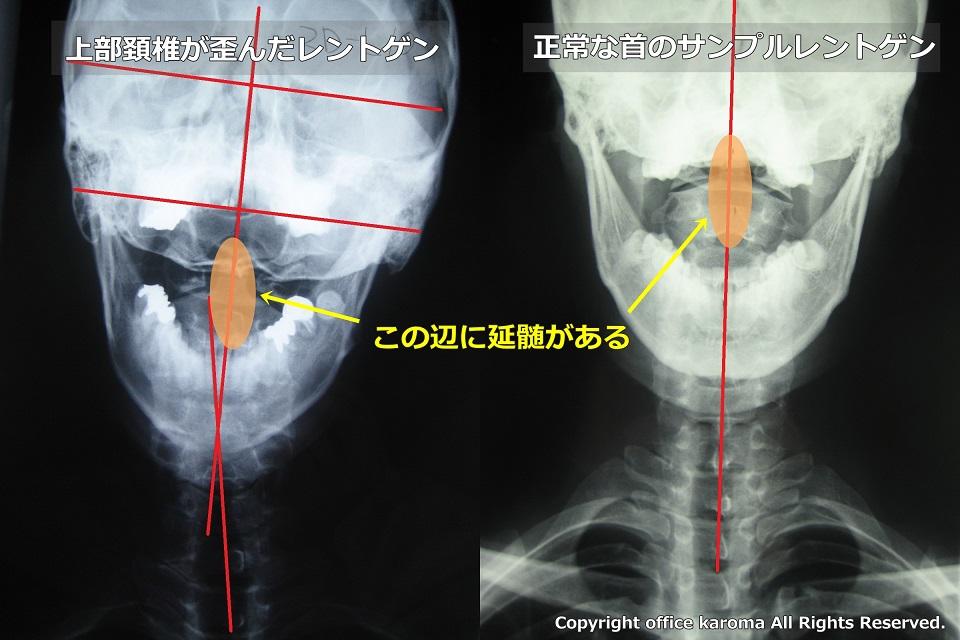 上部頚椎,歪み,延髄