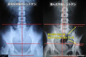 骨盤の歪み,足の長さを補正