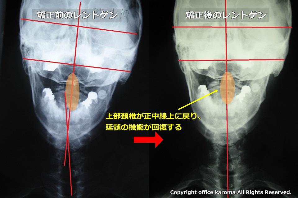 上部頚椎,歪み,矯正