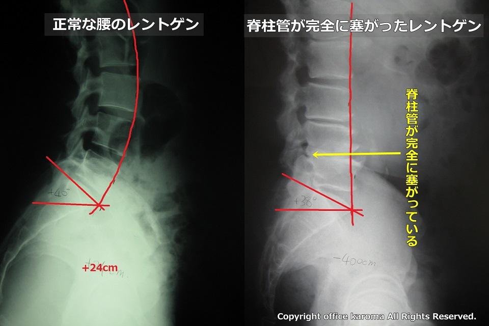 脊柱管狭窄症,治らない