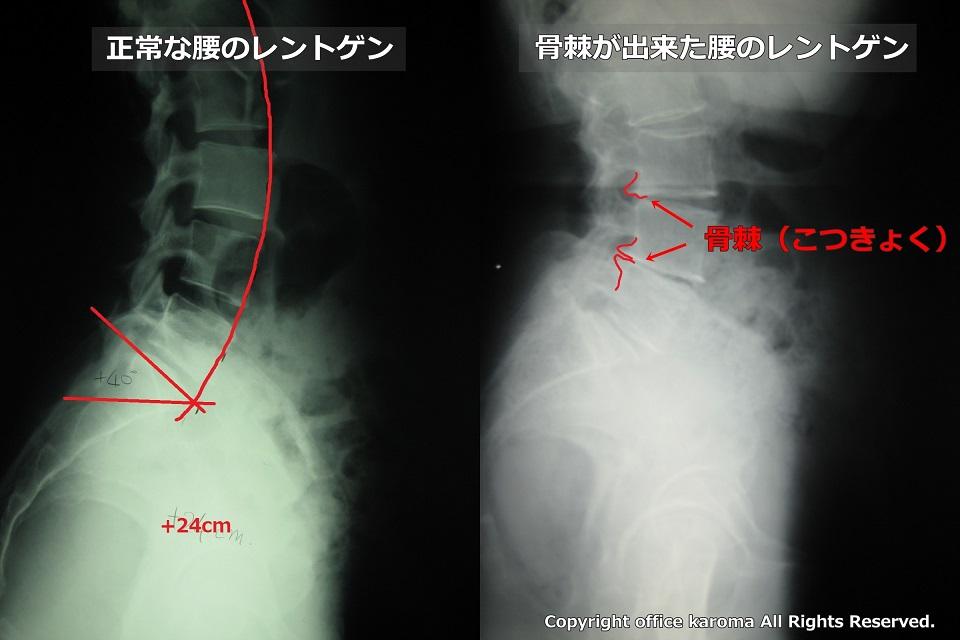 骨棘,脊柱管狭窄症,レントゲン