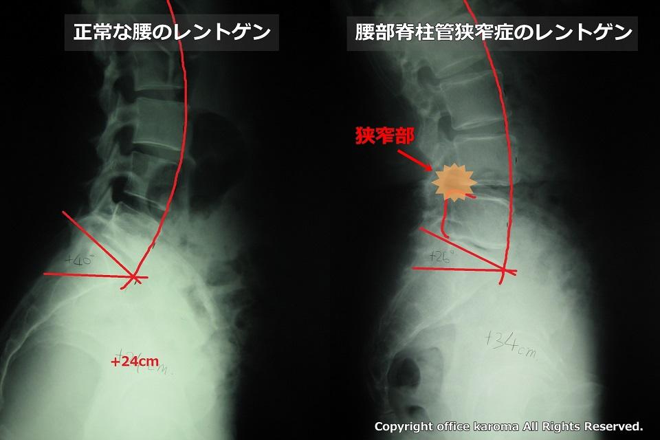腰部脊柱管狭窄症,レントゲン