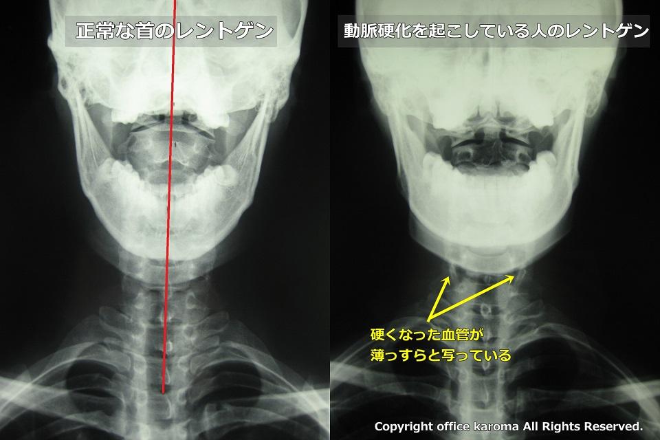 椎骨動脈,動脈硬化,レントゲン