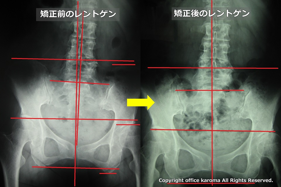 変形性股関節症,治った,レントゲン
