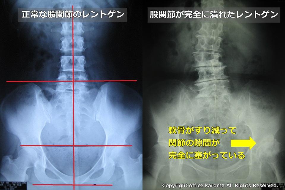 変形性股関節症,手術適応
