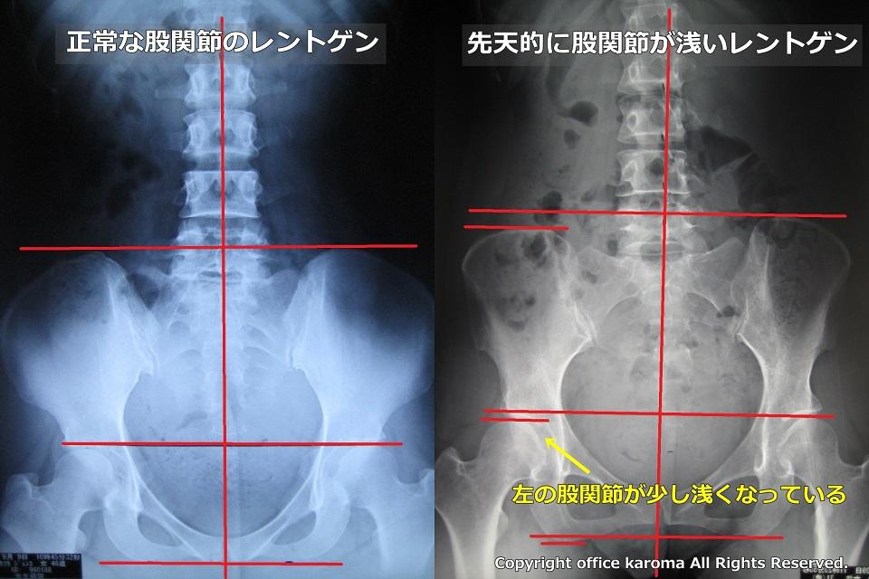 股関節が浅い,レントゲン