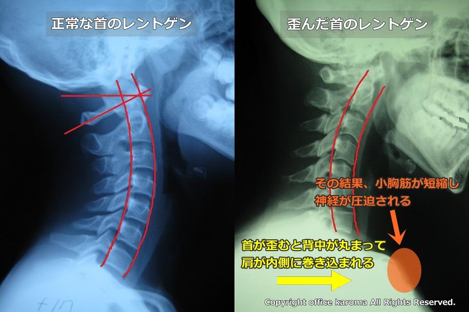胸郭出口症候群,小胸筋症候群,レントゲン