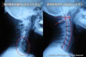 頚椎,首の骨,変形