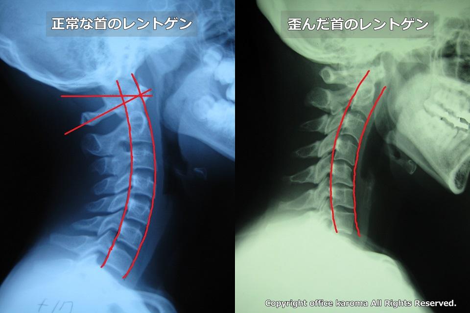 胸郭出口症候群,レントゲン,サンプルとカイホティック