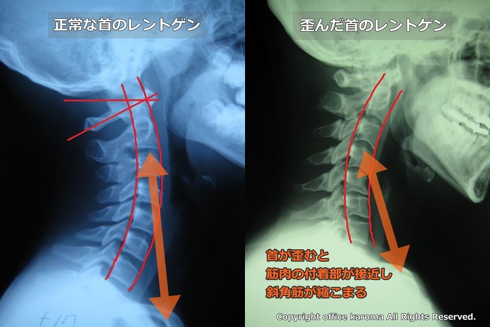 胸郭出口症候群,斜角筋症候群,レントゲン