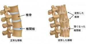 変形性頚椎症