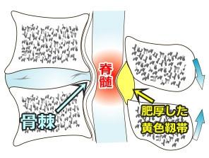 骨棘,骨の変形,頚椎症