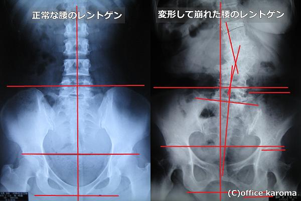 坐骨神経痛,骨の変形