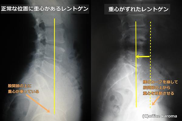 股関節痛,腰痛,重心の位置