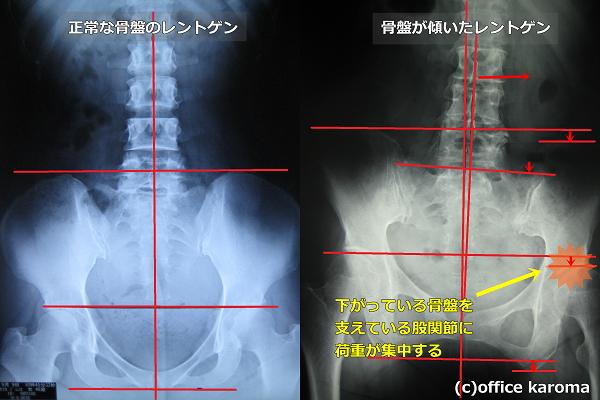 股関節が痛い,骨盤の歪み