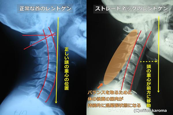 頸肩腕症候群,ストレートネック,肩こり,レントゲン