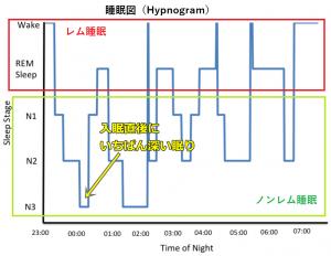 ヒプノグラム,睡眠図