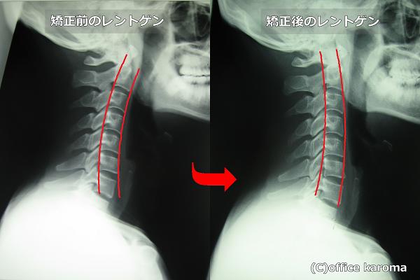 頚椎,首,プレポス