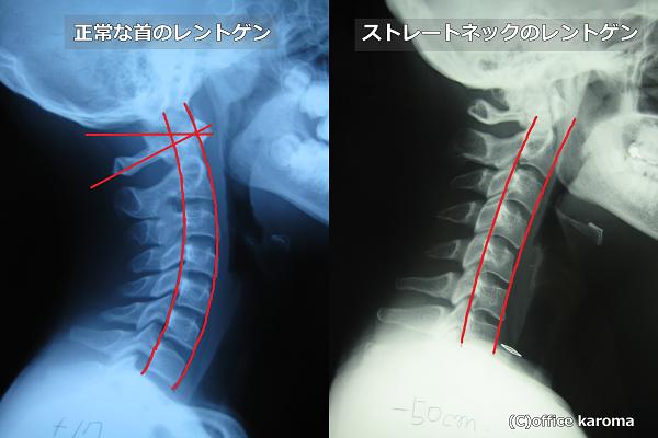 頸肩腕症候群,ストレートネック,レントゲン