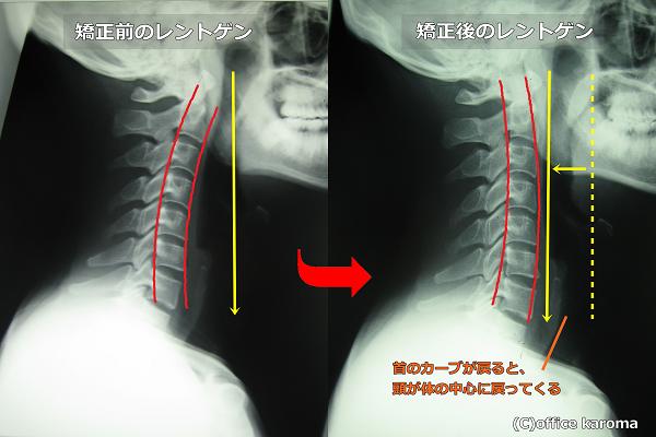 頸肩腕症候群,治療法,レントゲン