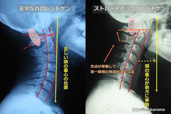 頸肩腕症候群,ストレートネック,自律神経,レントゲン