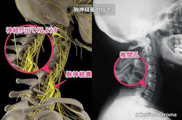 腕神経叢の位置