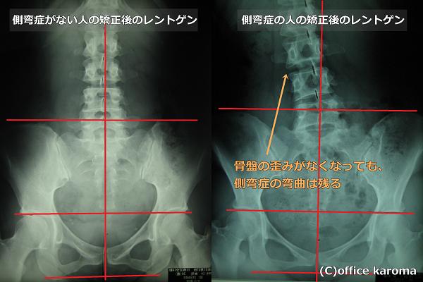 側弯症を矯正したレントゲン