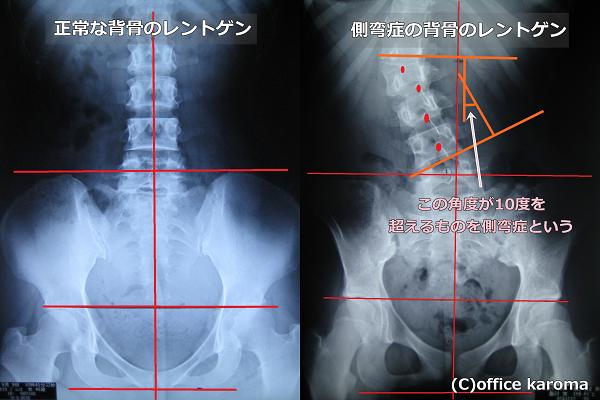 側弯症のレントゲン