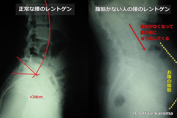 腹筋がない人の腰のレントゲン
