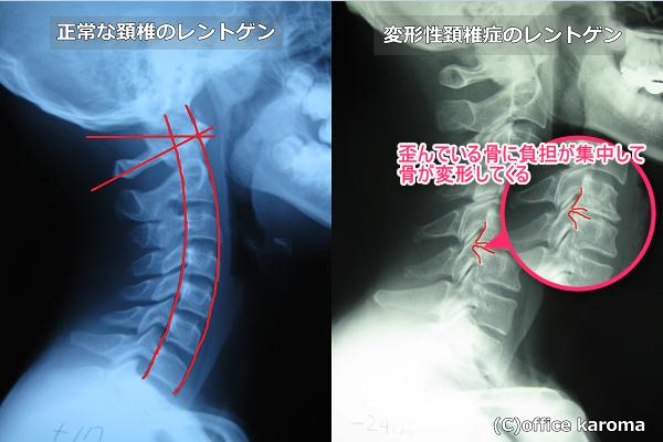 変形性頚椎症のレントゲン