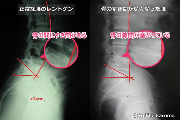 骨の隙間がない腰のレントゲン