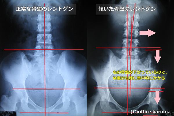 膝の痛みのレントゲン