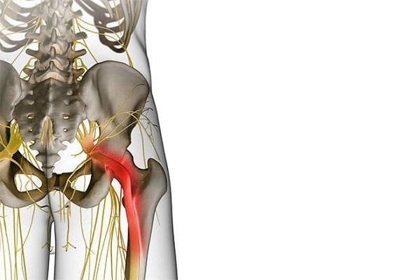 症状別・坐骨神経痛,足のしびれ
