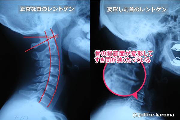 変形した首のレントゲン