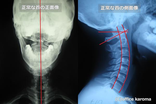 正常な首のレントゲン