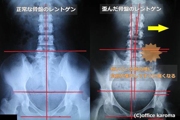 骨盤の歪みが原因の腰痛