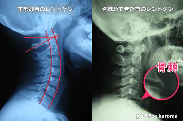 骨棘のレントゲン
