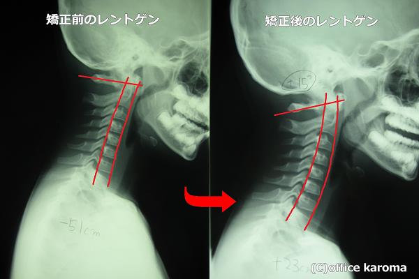 子供の頭痛,レントゲン,プレポス