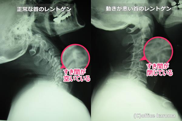 IVF狭窄,首の動きが悪い,レントゲン