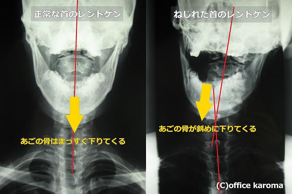 顎関節症で片方の顎だけ痛いレントゲン